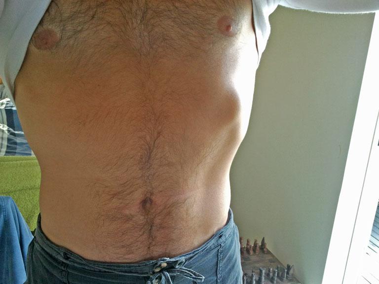 rib-scar
